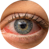 Short Ragweed Allergy Symptom Watery Eyes